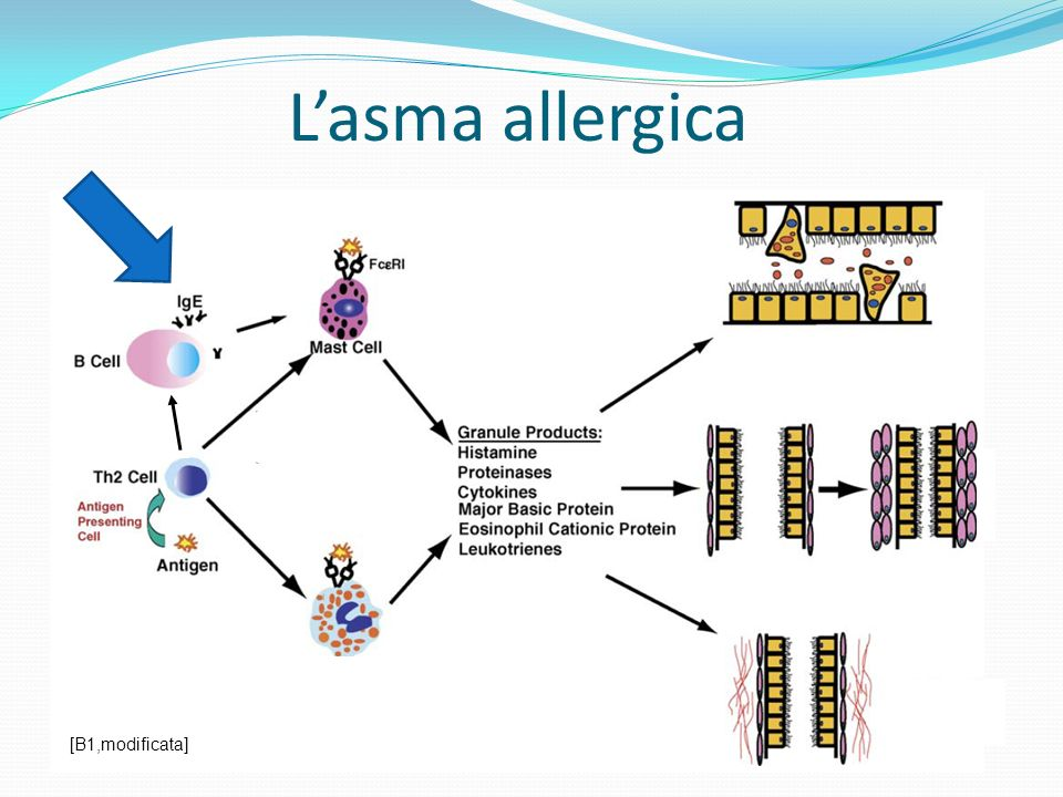 L'asma allergica [B1,modificata]
